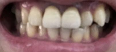 【ソニッケア+リステリン+クレスト】30年放置の歯の黄ばみを1週間で白い歯に改善した方法